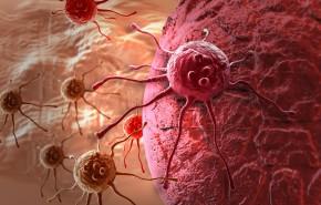 Krebserkrankungen